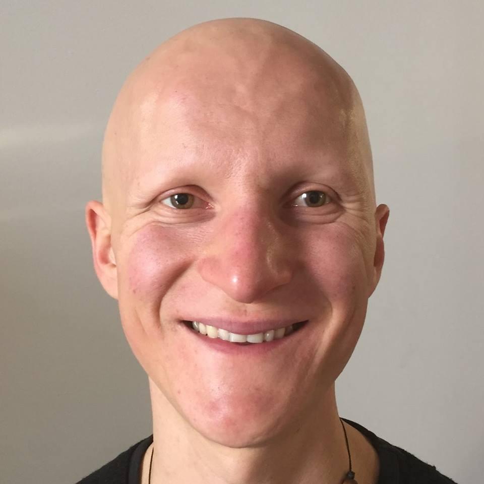 Subrina recept sampon protiv opadanja kose